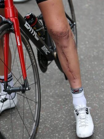 ARR: Taylor Phinney brakk leggbeinet og ødel kneet under det mariksnake mestersapet i fjor. Først nå er han i gang med proffsykling igjen. Foto: Chris Graythen / Afp / NTB scanpix