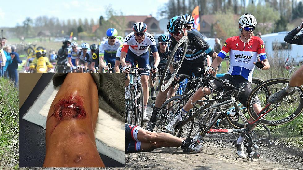KUTTET STYGT: Fran Ventoso ble kuttet stygt av en skivebrems under Paris-Roubaix. Bildet er fra en urelatert velt i samme ritt. FOTO: Tim de Waele (TDWSport.com)/skjermdump fra Fran Ventosos facebook-side.