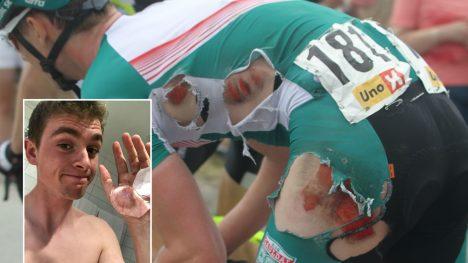 AU DA! procycling.nos bilder fra Ringerike Grand Prix viser tydelig hvor hard medfart Idar Andersen fikk under velten. I det nederste bildet viser 18-åringen fram såret i hånda